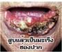 thaila5